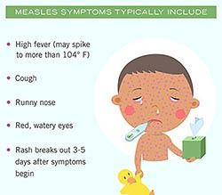 measles-symptoms-include